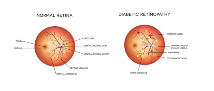 The number 1 cause of blindness in the U.S. is diabetes