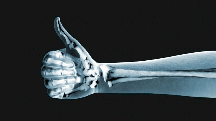 By weight, human bones are stronger than steel.